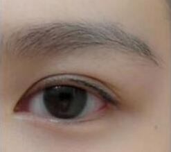 郑州大学第二附属医院植发整形 效果好不好 自然卷翘分享我的种睫毛图片