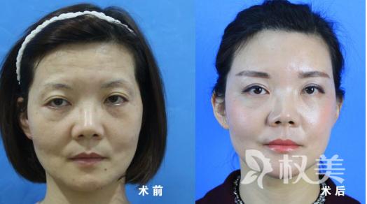 福州名韩整形美容医院脂肪细胞安全搬家 塑身美颜一举两得