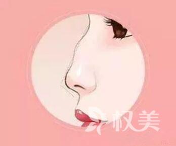 重庆曼格驼峰鼻矫正多少钱 多久恢复