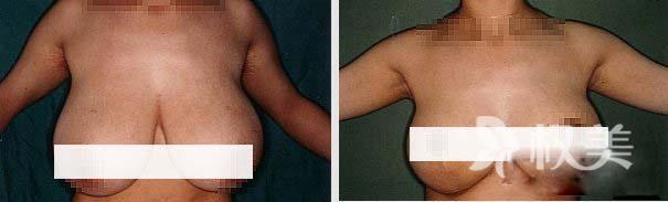 乳房下垂怎么办 中山大学附属第六医院整形科乳房下垂矫正术专业靠谱