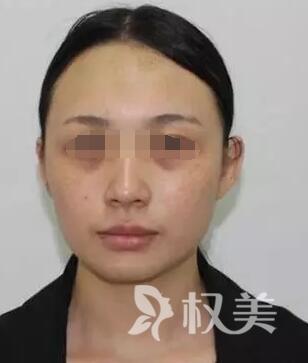 一白遮三丑当幸福新娘 分享我在贵阳皮肤病专科医院激光科做黑脸娃娃美白