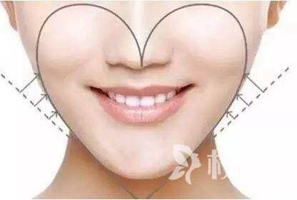 济南第三人民医院整形科减肥脸部方法 快速拥有瓜子脸