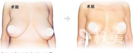 焦作五官医院整形科巨乳缩小术 打造个性十足的全新自我