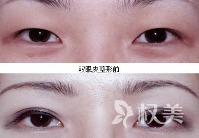 开封中心医院整形科双眼皮手术 使眼在面部的美学中显得更均称协调