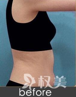 随州中心医院美容整形科做腰腹吸脂术 术后要适当运动正确饮食噢