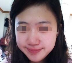 哈尔滨医科大学第一医院整形科面部整形手术 酒窝再造让我有了甜美的笑靥