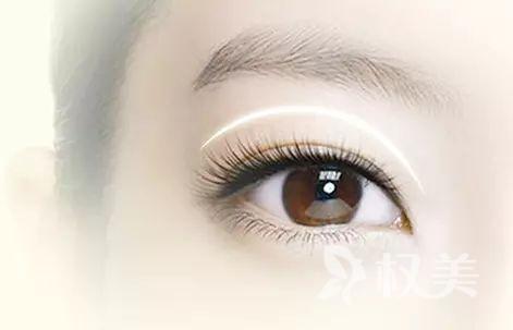 龙岩欧菲整形切开双眼皮好吗 切双眼皮过程是怎样的