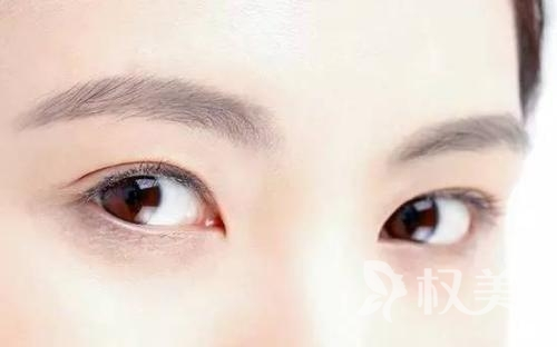黄石爱康医院整形科埋线双眼皮 采用连续性缝合法降低双眼皮松脱