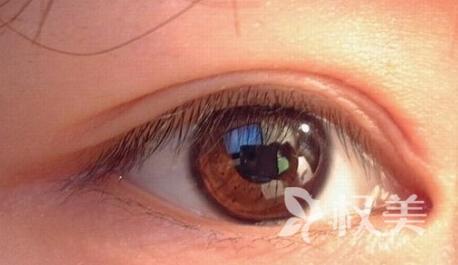眼睛凶巴巴不美丽 来漯河中心医院整形科做开内眼角手术