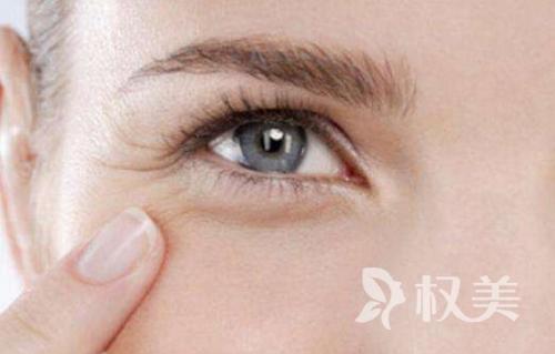 杭州爱琴海整形眼角鱼尾纹的去除方法哪种好
