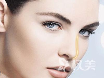 玻尿酸隆鼻的费用是多少 金钱诚可贵 颜值价更高