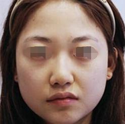 我在福州第一医院整形科做下颌角整形 改变的不只是脸型 还有人生