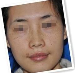 激光祛斑成果分享 我在厦门第二医院整形外科重拾雪嫩肌肤