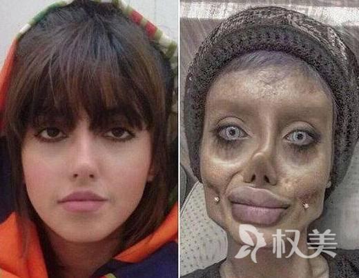 """国外女子整容成僵尸版""""安吉丽娜朱莉"""" 被网友称活见鬼了"""