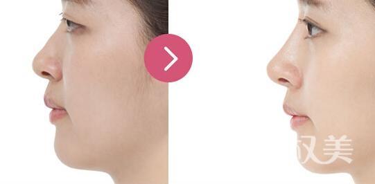 北京自体软骨隆鼻需要多少钱 自体软骨隆鼻材料源于自身无排异反应