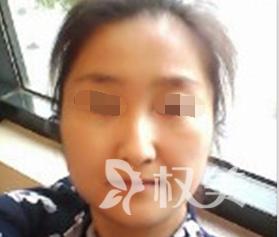 彩光嫩肤让我年经了10岁 分享在北京医院激光科的美白效果