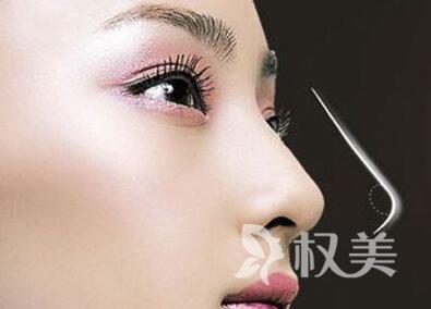 亳州人民医院整形科自体隆鼻手术多少钱