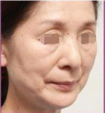 小小针剂除皱威力这么大 说说我在大庆东湖医院整形科注射肉毒素除皱感受