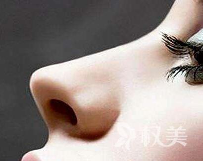 重庆江陵医院整形科做鼻尖 让鼻子更协调