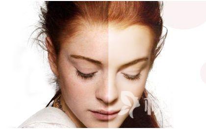 祛斑激光方法哪种好 e光祛斑为爱美者打造无瑕肌肤