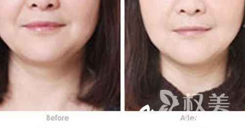 e光嫩肤多少钱 e光嫩肤价格合理 功效齐全解决皮肤多种问题