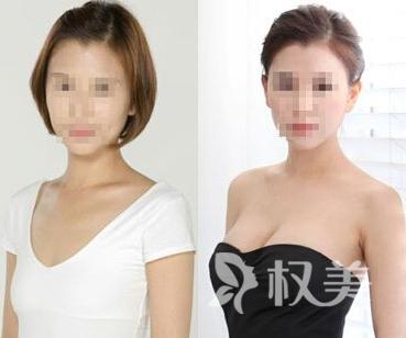 娜高假体隆胸价格是多少 一般都是在2.5~3.5万左右