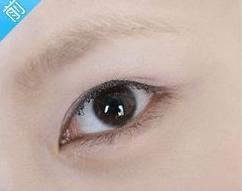 消失的眉毛 郑州大学附属医院植发整形科毛发移植术 帮我逆袭白富美