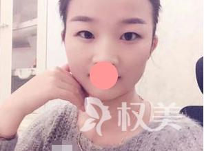 重庆江陵医院整形科做切开双眼皮手术 形成了一条如同天生的重睑线