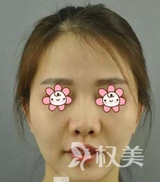 我在北京中山医院整形科做朝天鼻整形 术后效果不夸张不突兀我很喜欢