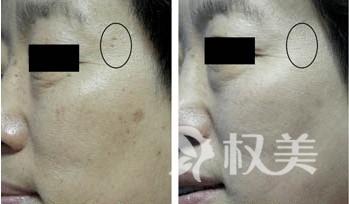 斑点问题困扰不已  试试更有效的祛斑方法复合彩光祛斑
