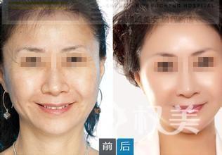 脸部长老年斑怎么办 试试标本兼治的激光祛斑方法