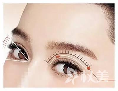 韩式双眼皮是永久的吗 创伤小恢复快 自然不突兀