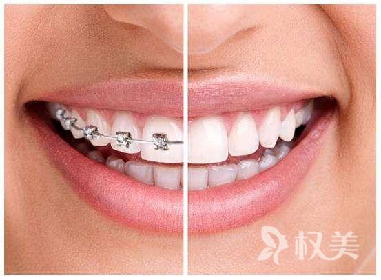 牙齿矫正需要多久 用拔牙吗