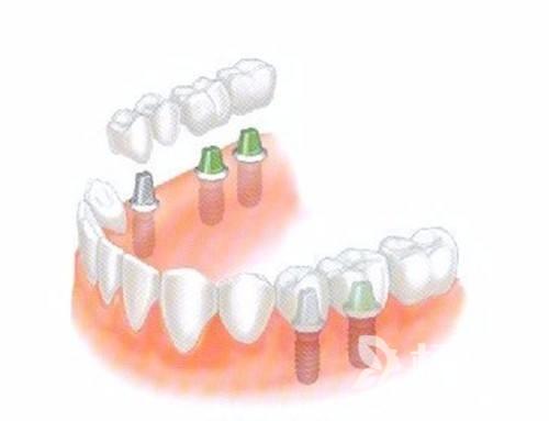 全口种植牙多少钱 能用多久