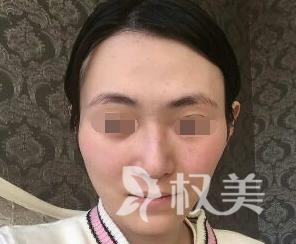 自体脂肪填充面部价格贵不贵 北京宜健三业医院整形科给了我一个惊喜