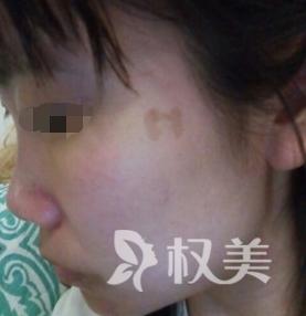激光祛斑哪里好 广州医学院整形激光美容外科给了我意外的惊喜