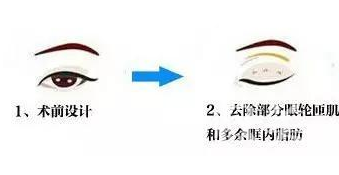 眼部整形图片详解 分分钟让你了解双眼皮