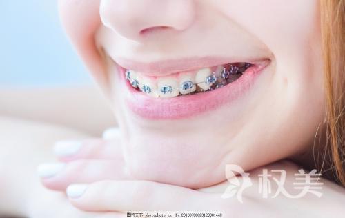 嘉兴牙齿矫正多少钱 矫正过程复杂吗