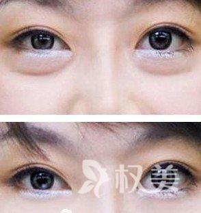 激光去眼袋的价格是多少 激光祛眼袋无损伤 无切口 不存在疤痕