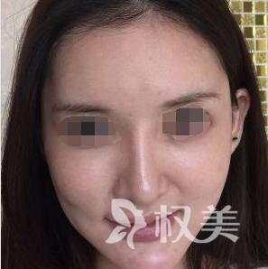 面部提升术帮我留住青春留住美 深圳流花医院美容科是最棒的