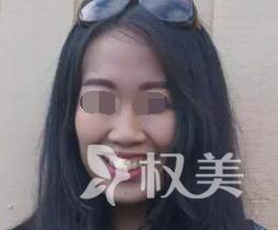 在重庆医科大学口腔医院整形科 牙齿矫正开启了我自信的生活