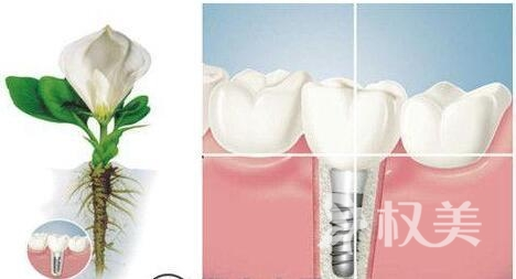 利美康种植牙电话地址 种植牙贵吗?能保持多久