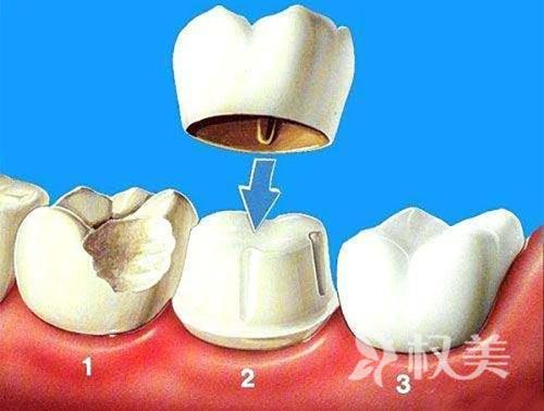 北京圣贝口腔医院地址 做烤瓷牙需不需要磨牙?磨牙疼吗