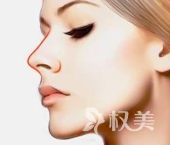 鼻部整形价格表 鹰钩鼻矫正需要多少钱