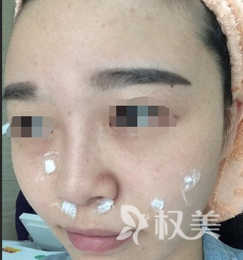 我在广西中医学院整形科的真实经历告诉你:激光去斑有用吗