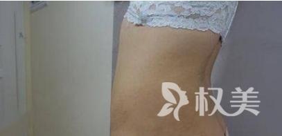 """妥妥地从""""大妈""""变成女神 我在青岛中心医疗集团整形科做了腰腿吸脂术"""
