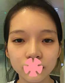 """大脸妹纸该何去何从 试试我在青岛松山医院整形科做的""""韩国V-line脸""""术吧"""
