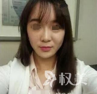 岁月是把杀猪刀 记录我在荆州中心医院整形美容外科注射玻尿酸除皱经历