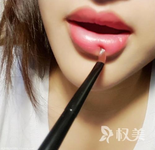 口唇整形术前需要做好这些事情 你都做到了吗
