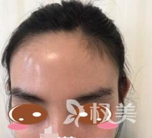 没有hold不住的发型 分享我在郑州大学第二附属医院植发科发际线种植经历